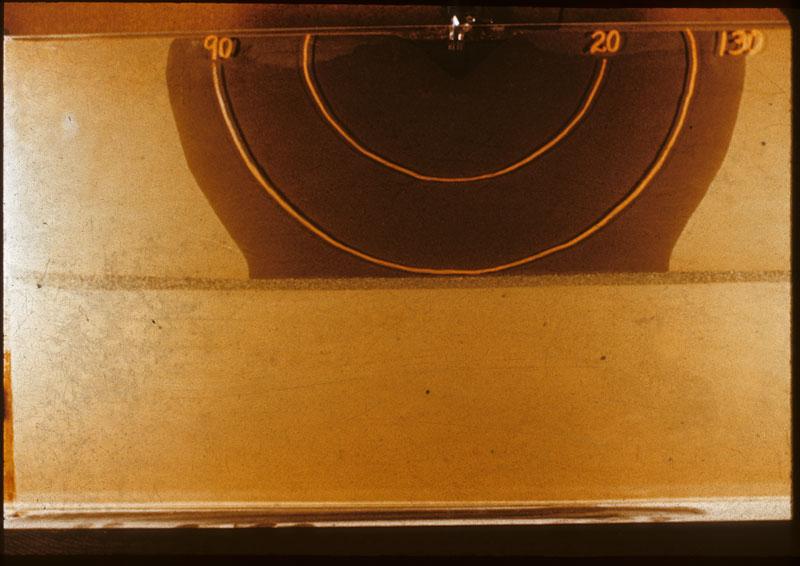 Gardner's sand lense 2nd